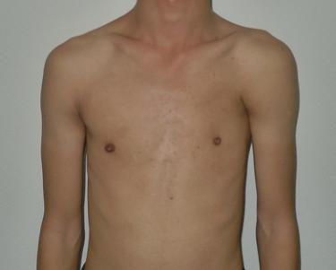 典型男性poland综合征,左侧胸大肌完全缺如