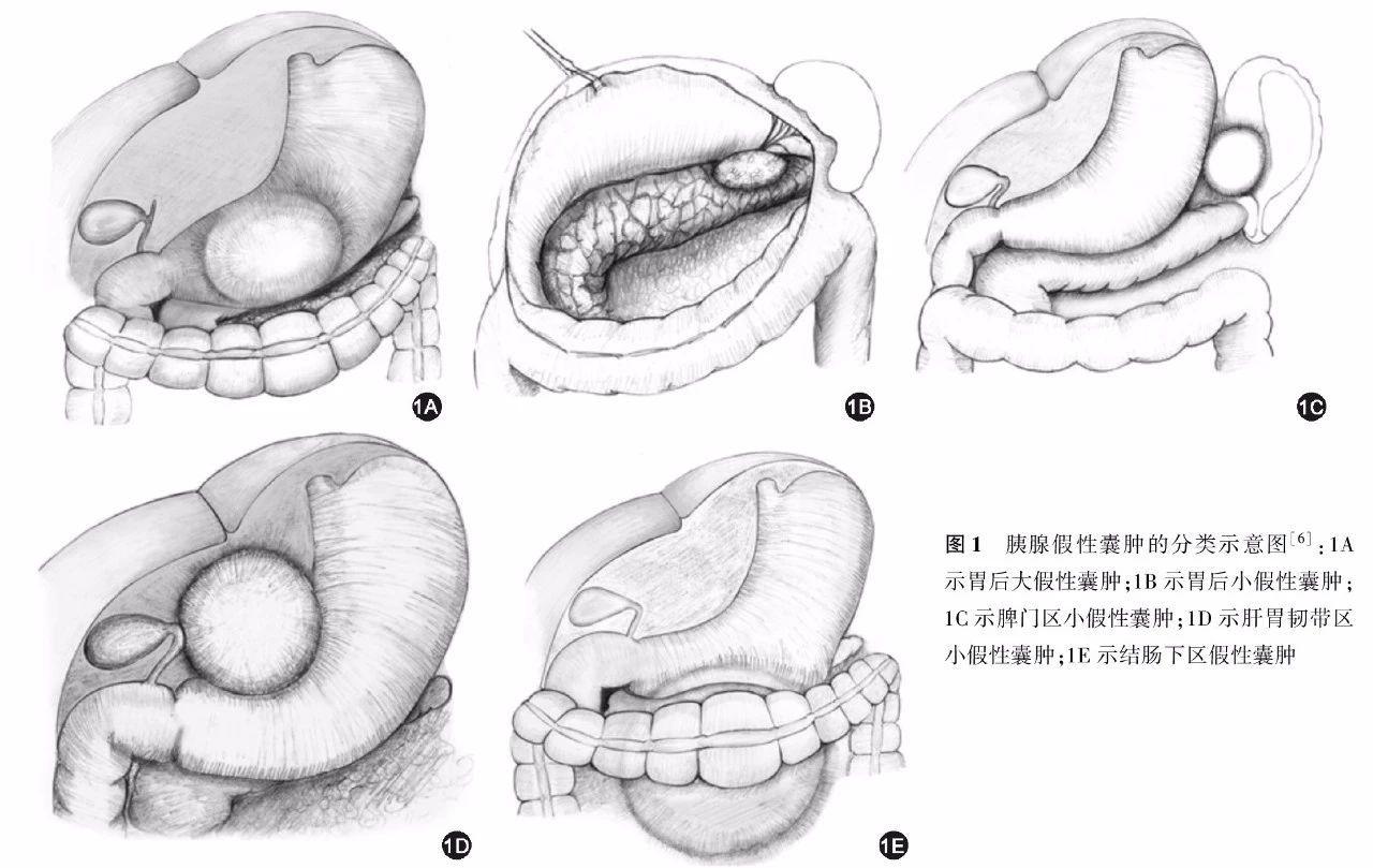 肛门囊肿什么症状图片_39健康经验
