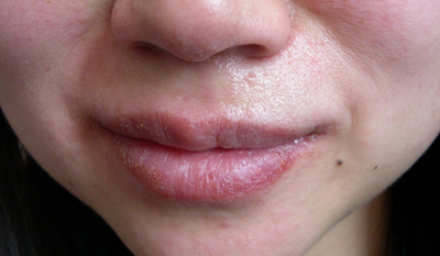 物 唇 出来 口の中・唇のトラブル(口内炎・口角炎・口唇炎・ヘルペス)