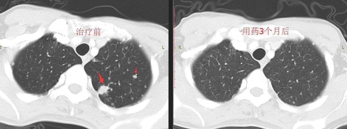 IV期肺腺癌患病者吃吉非替尼(gefitinib)靶向医治显效病例报告