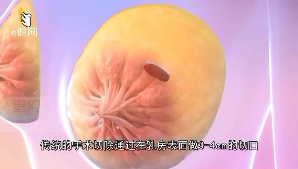 乳腺麦默通手术介绍(视频来自网络,非自己制作)
