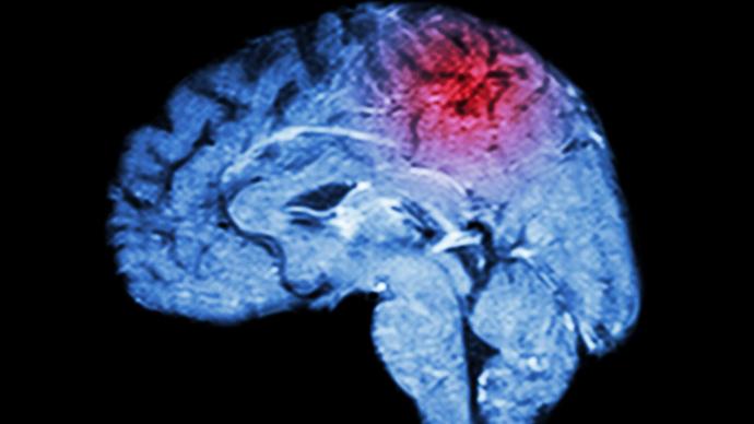 脑梗塞急性期能做手术吗,还是需要多久后才能手术?
