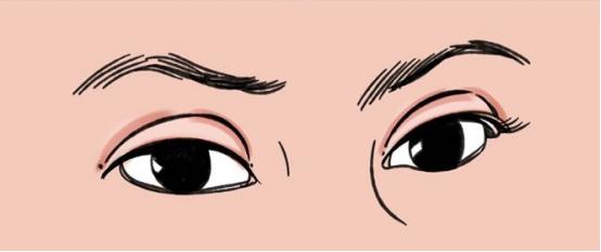 双眼皮做的太宽了有什么影响?