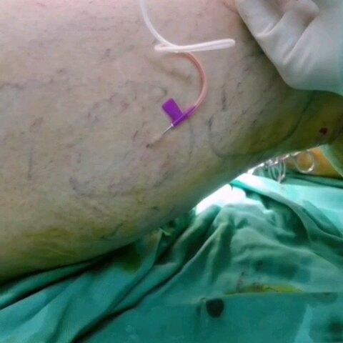 静脉曲张微创治疗,射频联合硬化剂,更细小的血管干预,更精致的治疗