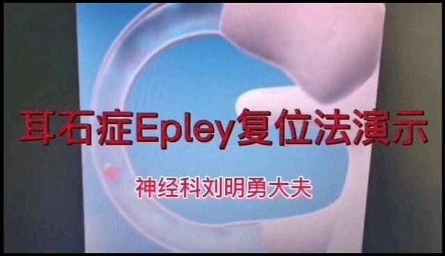 耳石症Epley复位法演示