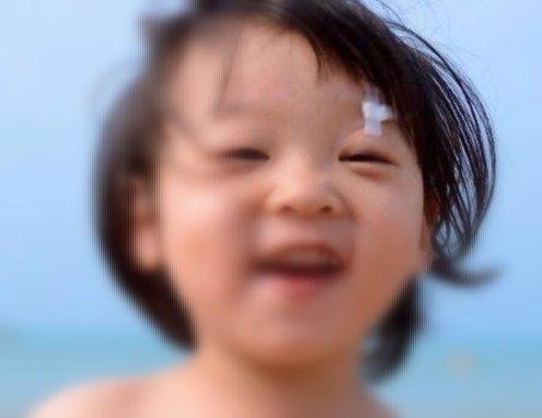 孩子使用提拉胶布提拉眼睑