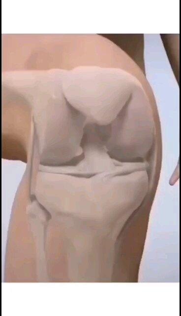 膝关节前交叉韧带损伤的小伙伴看过来——前交叉韧带重建手术演示小视频,