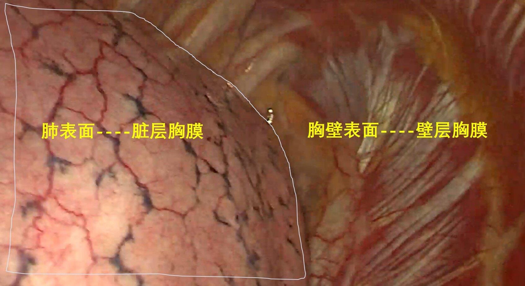 胸膜腔1.jpg