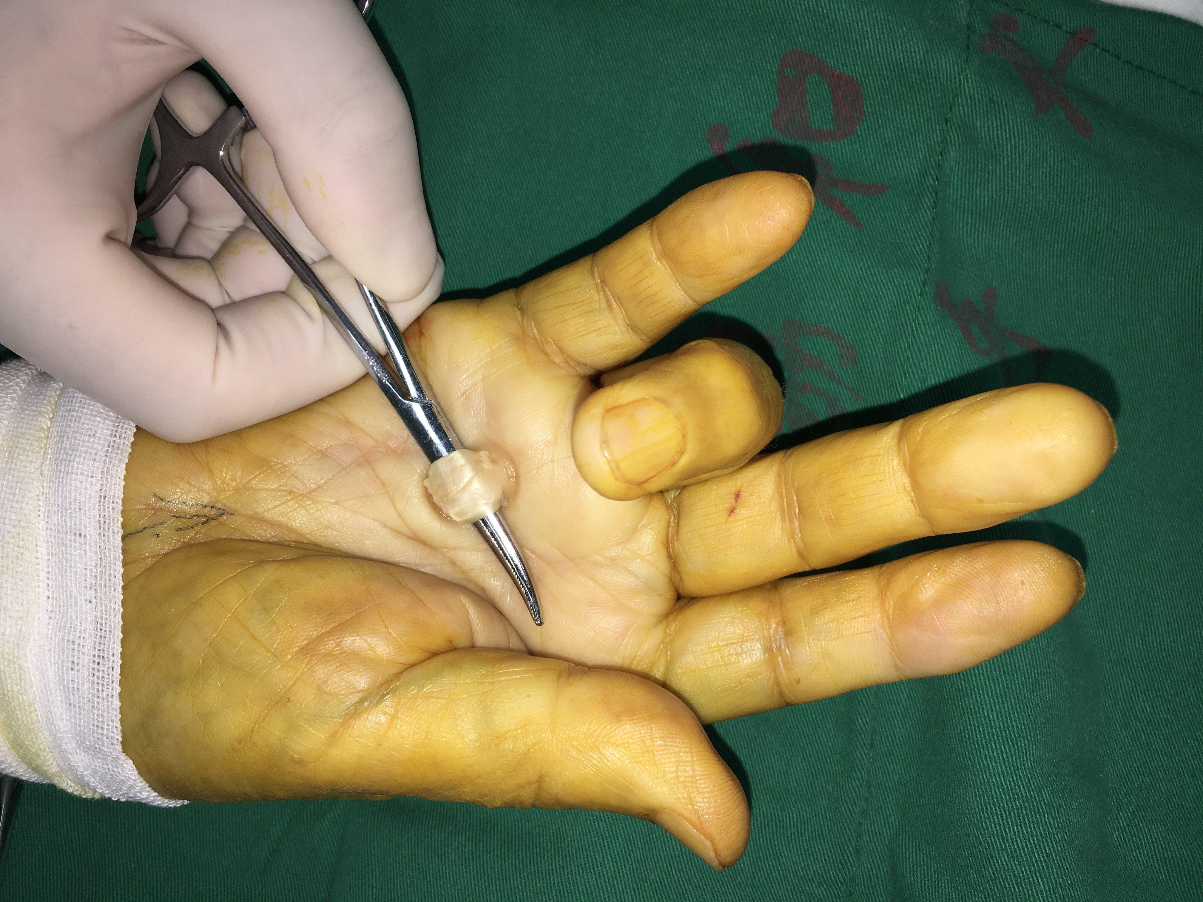 手術 腱鞘炎 腱鞘炎とは・症状・治し方・手術の費用やリスク・おすすめの湿布・サポーター
